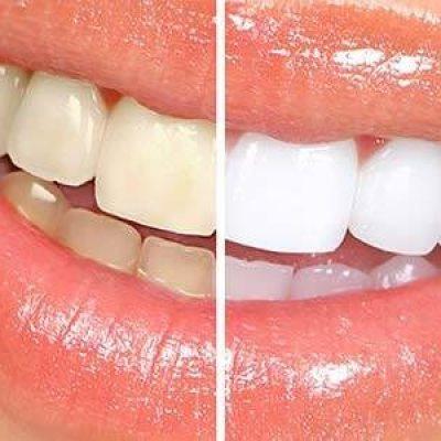 teeth_whitening_121487089652-1