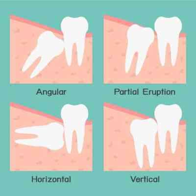 wisdom_teeth_removal_11487089297-1