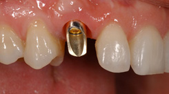 Donna-implant-before