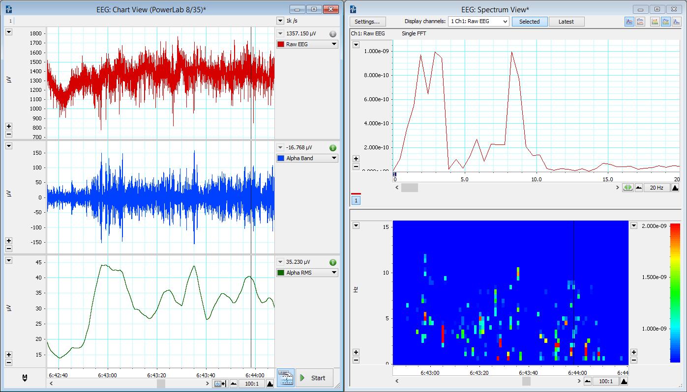 Electroencephalography (EEG) Analysis & Measurement | ADI