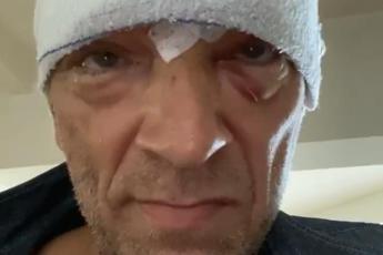 Incidente in moto per Vincent Cassel, l'attore mostra testa bendata e lividi