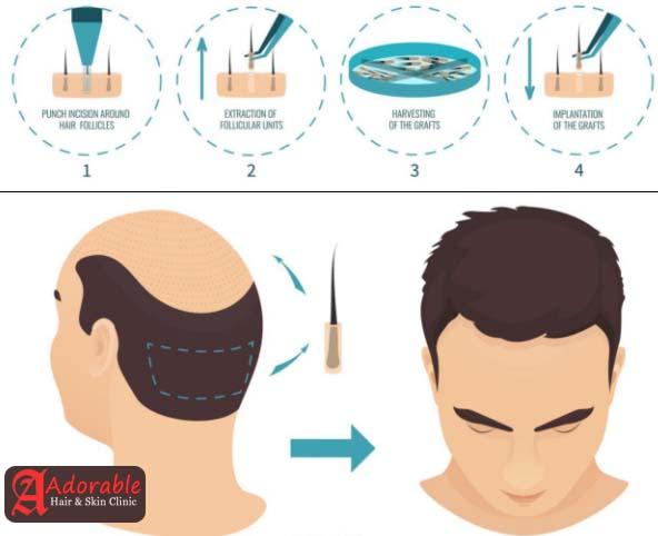 Best Hair Transplant Clinic Delhi
