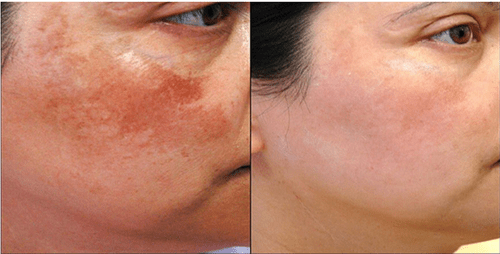Melasma Treatment in Delhi, Advantages of Laser therapy
