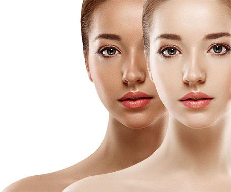 Tan removal In Delhi, Laser Treatment, Risk, and Prepration