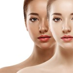 Tan removal In Delhi, Laser Treatment, Risk, and Prepration