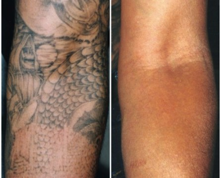 Tattoo removal, Techniques, Results, Recovery and Guidelines