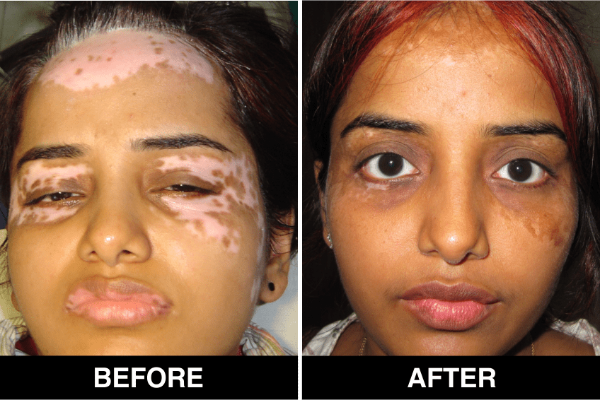 Vitiligo Treatment in Delhi, Procedure, and Post-Guidelines