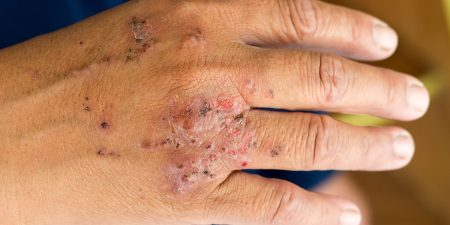 Eczema Laser Treatment, Causes, Risk, and Side Effects