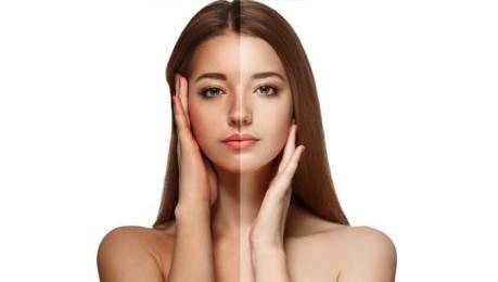 Tan removal In Delhi, Laser Treatment, Risk, and Preparation