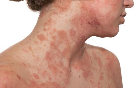 What Is Dermatitis? Symptoms, Treatment, and Prevention