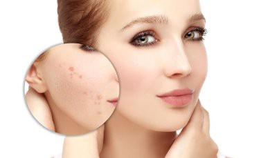 Chemical Peel Treatment Question and Answer