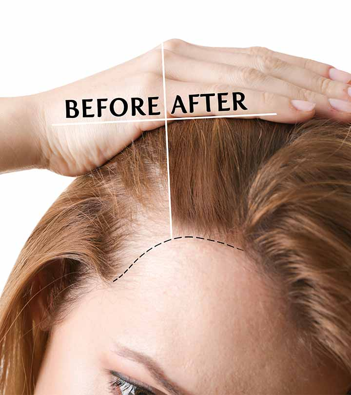 Hair Transplant Treatment Questions and Answers