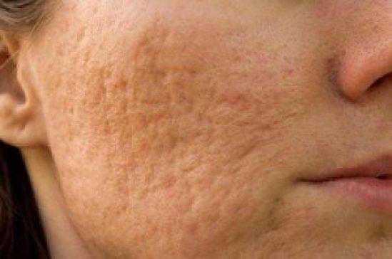 Acne scar removal in Delhi, Types of Laser Treatments, Benefits Acne scar removal in Delhi, Types of Laser Treatments, Benefits Acne scar removal in Delhi,