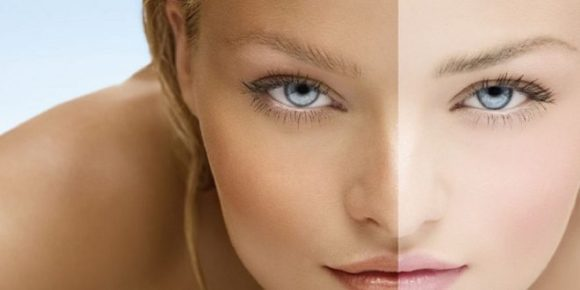 Skin Whitening Treatment, Procedure, Benefits, and Cost