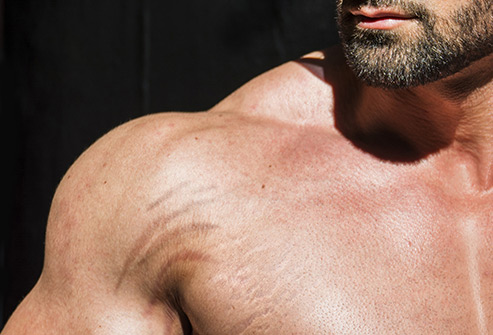 Male Stretch Marks Removal in Delhi, Best Clinic, Cost, Causes