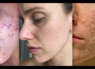 Acne scar removal in Delhi, Types of Laser Treatments, Benefits Acne scar removal in Delhi, Types of Laser Treatments, Benefits Acne scar removal in Delhi,