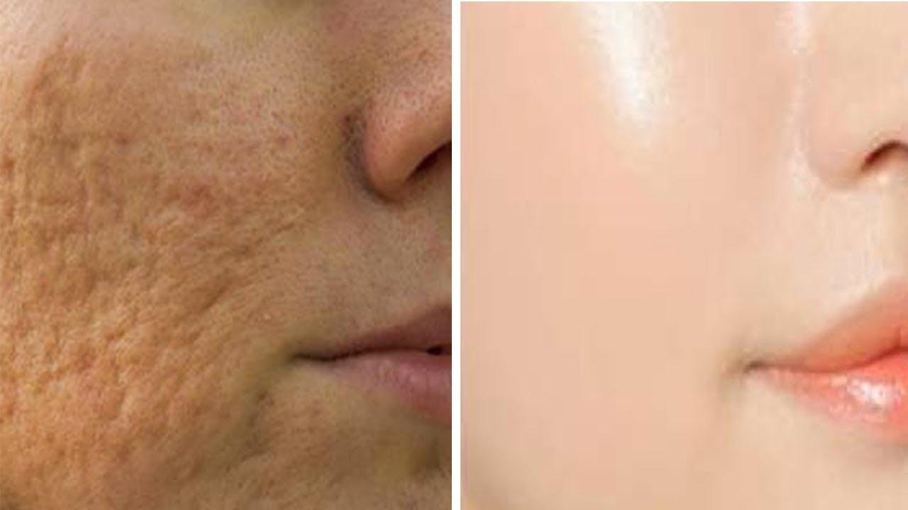 Open Pores Treatment in Delhi