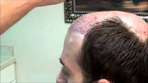 Hair Transplant Question