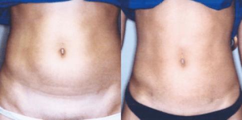 Body Slimming