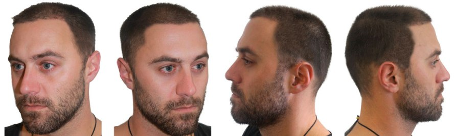 FUE Hair Transplant Procedure, Advantages, and Cost