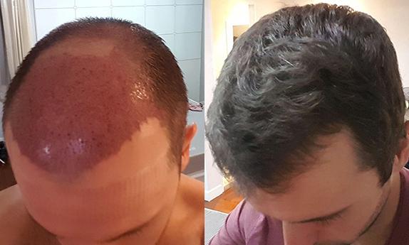 Hair Transplant Question