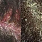 Oily Scalp Treatment in Delhi