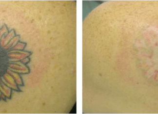 Tattoo Removal Recovery