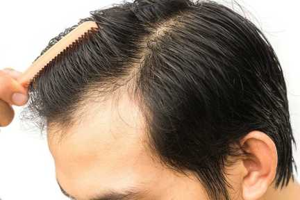 Hair transplantation, Causes of Hair Fall, Permanent Solution