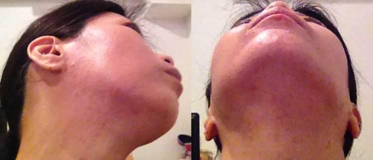 原因を取り除けが頑固な顎ニキビを治すことが出来ます