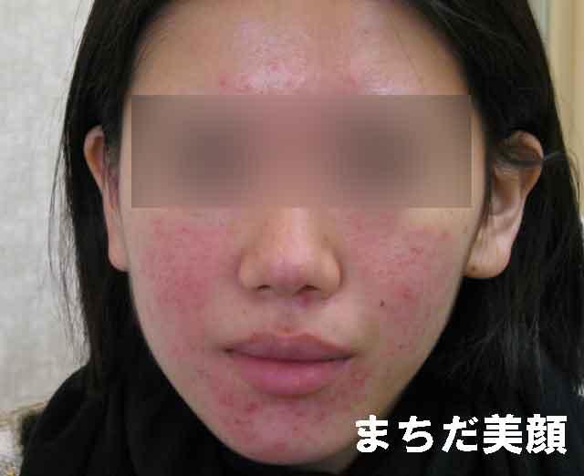 熱のこもりによって出る赤ら顔の特徴は、朝は色白なのに時間の経過と共に赤みが強くなってきます