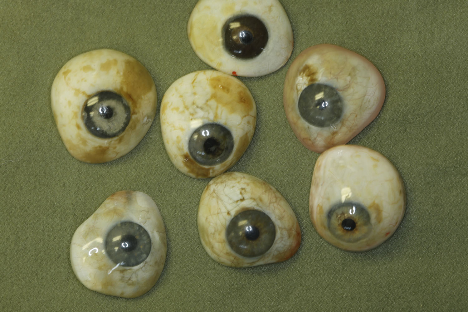 Biannual Cleanings Recommended For Prosthetic Eyes