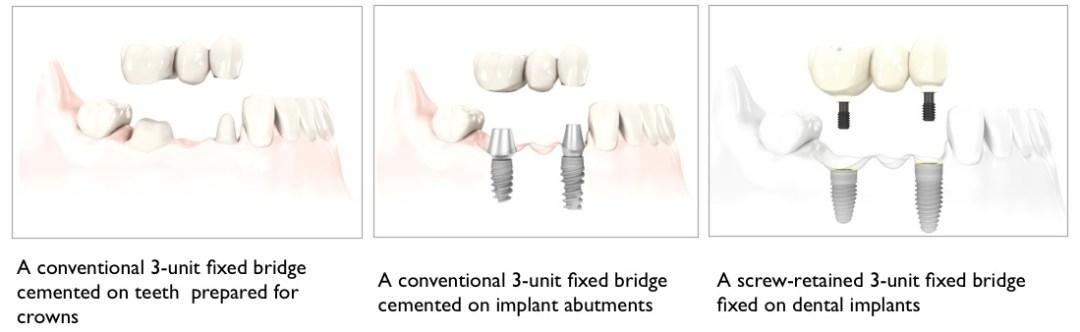 Jenis Perawatan Implan Gigi- Global Estetik Dental Care