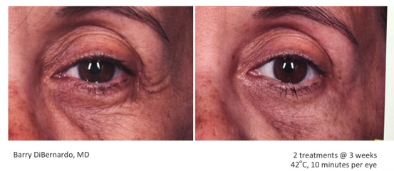 NYC Skin Tightening ThermiSmooth Face  Advanced Dermatology