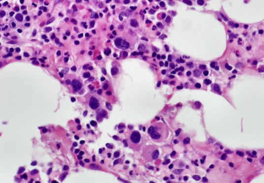 Normocellular bone marrow with progressive trilineage hematopoiesis