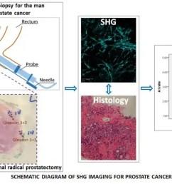 improving prostate cancer diagnosis through imaging collagen [ 3363 x 1800 Pixel ]