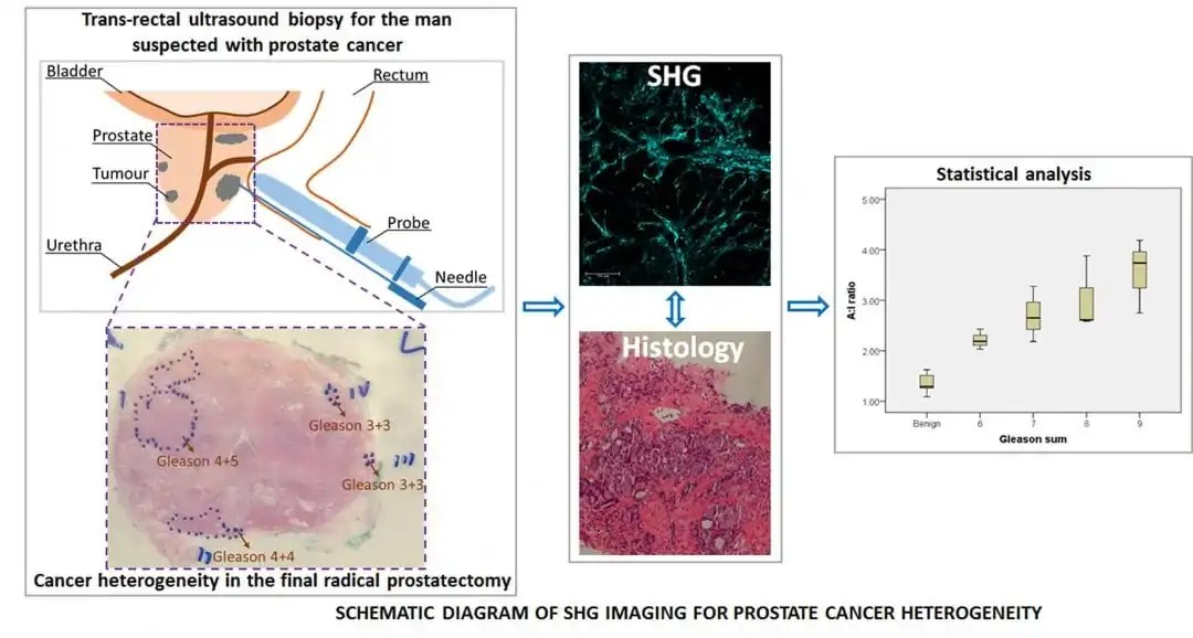 hight resolution of improving prostate cancer diagnosis through imaging collagen