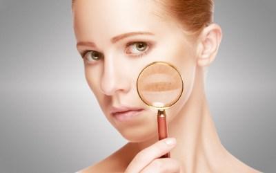 Post Inflammatory Hyperpigmentation – Understanding Melanogenesis