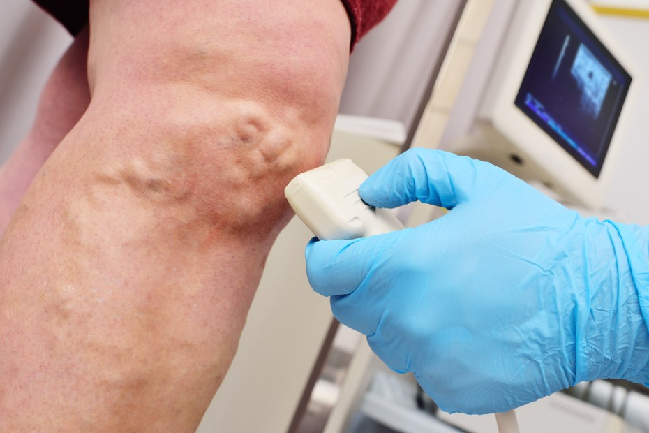 vascular surgeon performs an ultrasound examination of the patient's veins