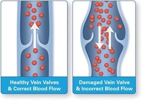 healthy vein