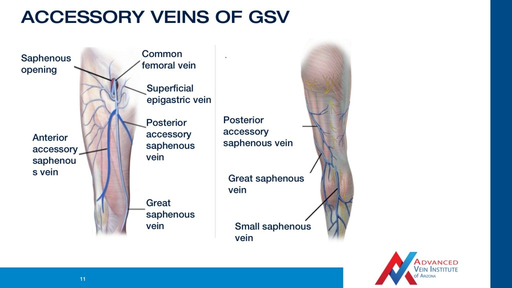 Video The Venous Anatomy Varicose Vein Treatment In Tempe