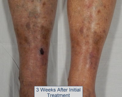 venous leg ulcer picture