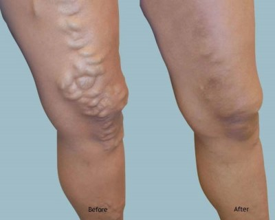 before and after vein surgery