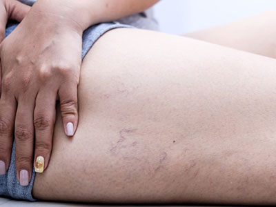 spider veins thigh