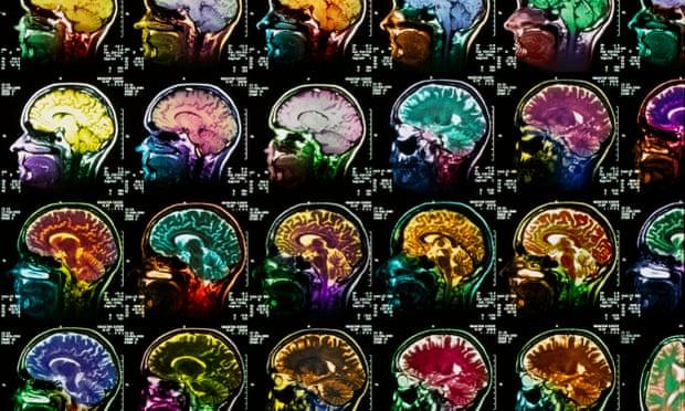 Quais os efeitos da corrida no cérebro