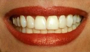 CosmaLite Temporary Veneers Make Your Smile, Perfect