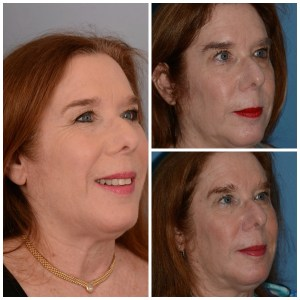 Stealth Jawline Ultherapy Treatment: shocking results!