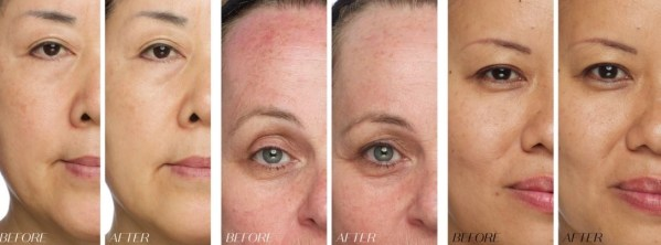 Jump for for Joy for Jouve! a review of Natural Skincare