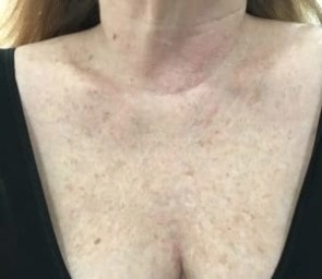 photo of my neck before halo laser treatment *photo by Dr.Schwartz