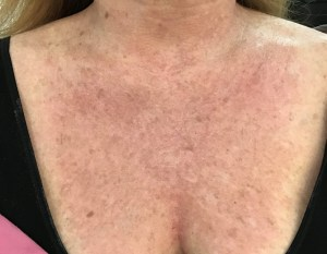 photo of my neck right after halo laser treatment *photo by Dr. Schwarts