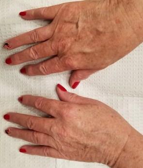 hand prior to genesis treatment